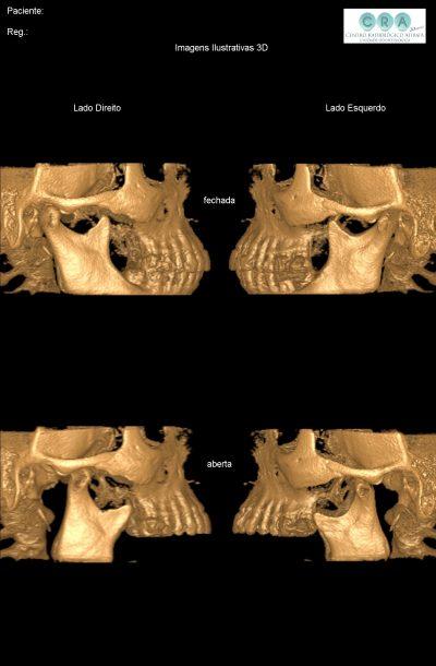 Tomografia de ATM