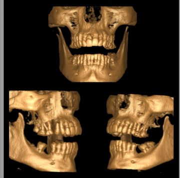 Tomografia Mandibular e Maxilar