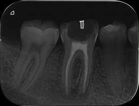 Rx Periapical